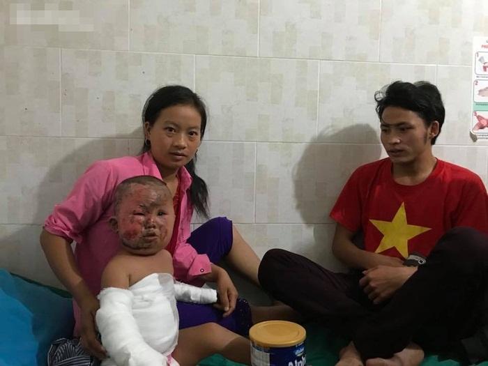 bé bị bỏng, xót xa bé 3 tuổi bị bỏng nặng vì bất cẩn của mẹ