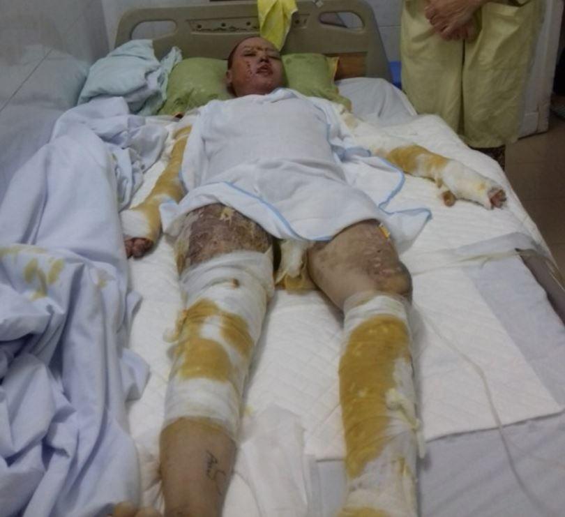 thiếu nữ 18 tuổi bị bỏng nặng