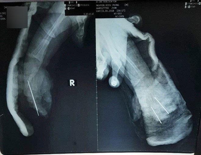 bé 2 tuổi bị đứt lìa ngón tay vì kẹp xích xe